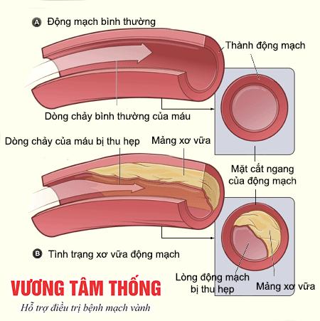 Động mạch vành bị xơ cứng và mảng bám khiến lượng máu qua đây bị ngăn trở